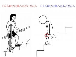 階段を下りる時は痛む方から