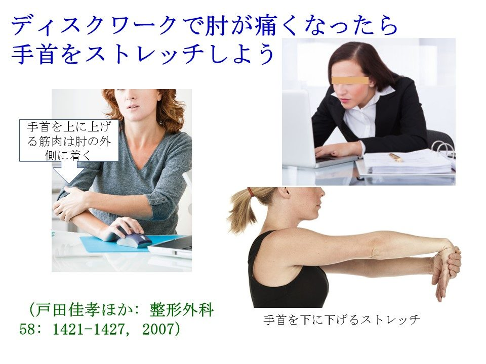 改編:ディクスワークで起こるひじの痛みには手首をストレッチしましょう