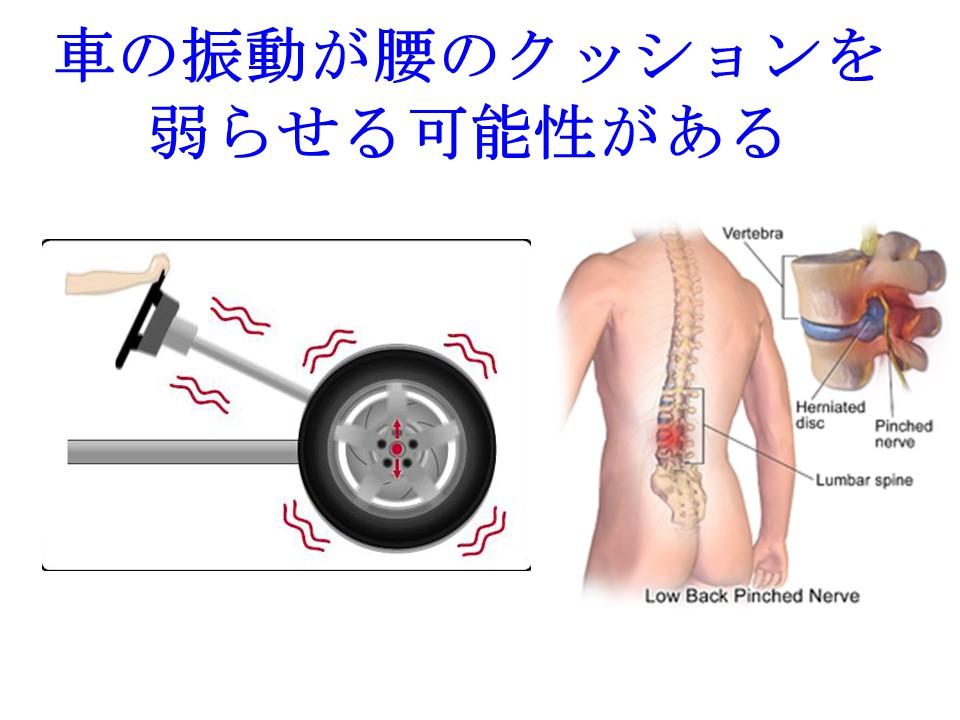 長時間車を運転していると振動で椎間板が傷つきやすい