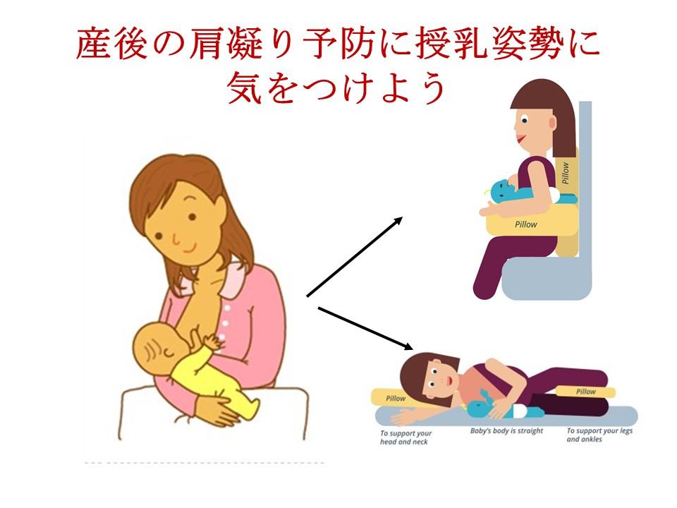 産後肩凝るのはホルモンの影響ではなく授乳姿勢の影響