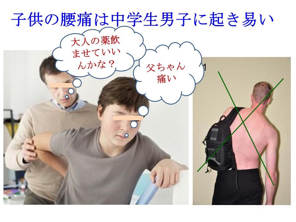 男子中学生に腰痛が増えている