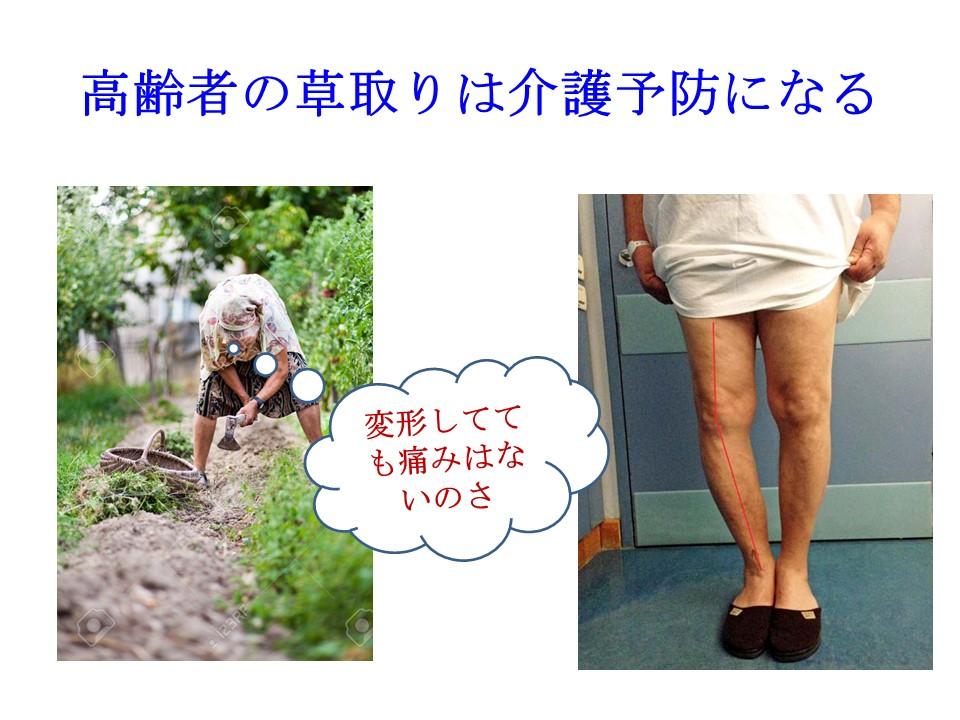 運動が苦手なら草取りが介護予防になる