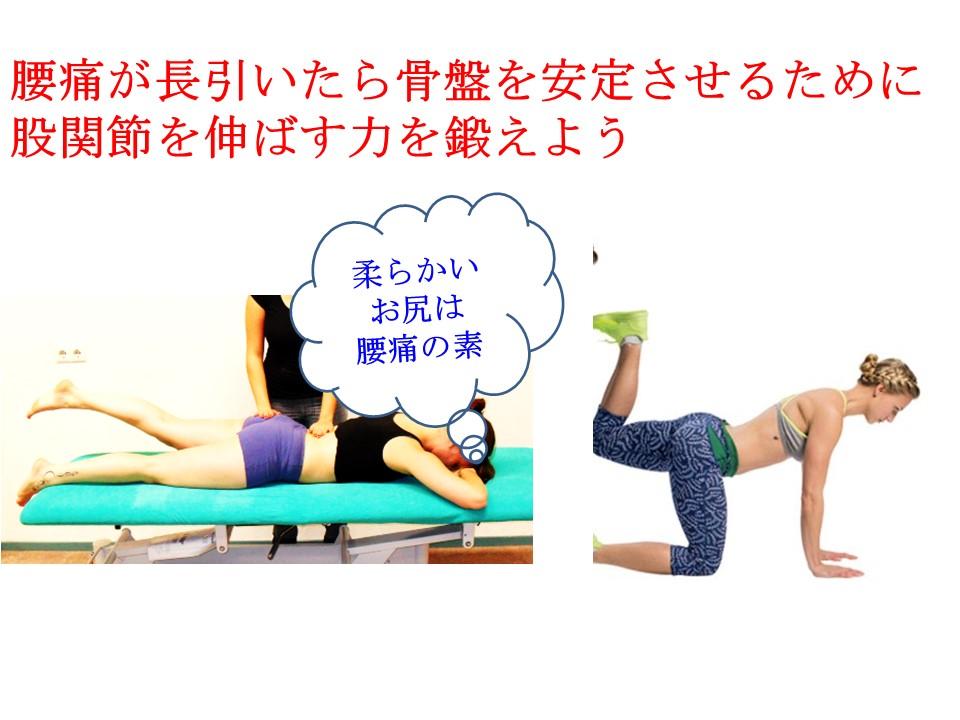 何度も腰痛を起こす人は股関節を伸ばすお尻の筋肉が弱い