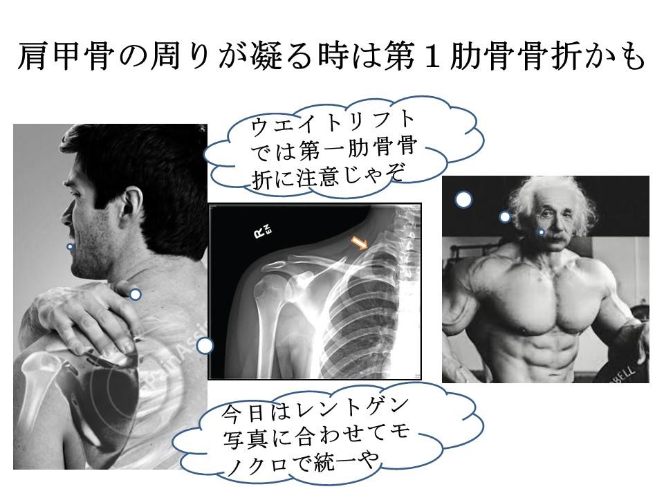 肩甲骨が痛むと思っていたら第1肋骨の疲労骨折かも