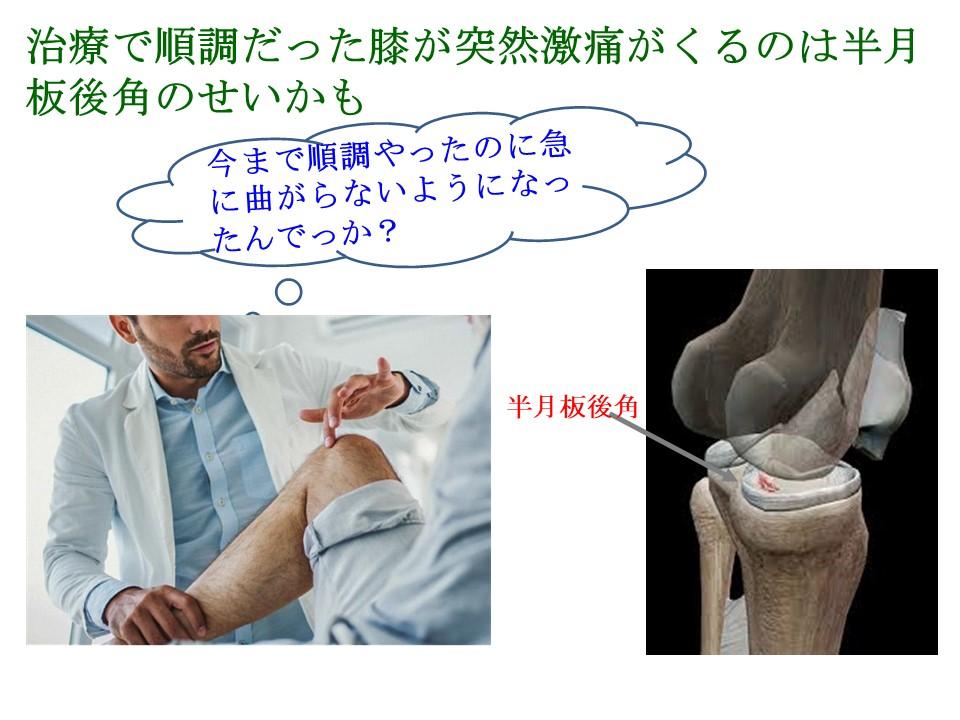 治療で順調だった膝に突然激痛がくるのは半月板後角のせいかも