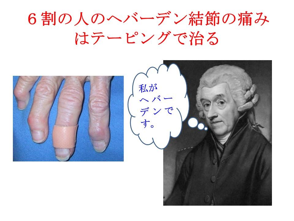 6割の人のヘバーデン結節の痛みはテーピングで治る