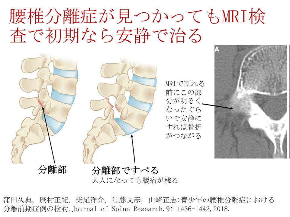 腰椎分離症が見つかってもMRI検査をして初期なら運動を休めば治る