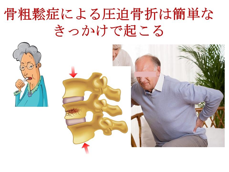 骨粗鬆症による骨折はくしゃみでも起こる。一応、病院に行こう。