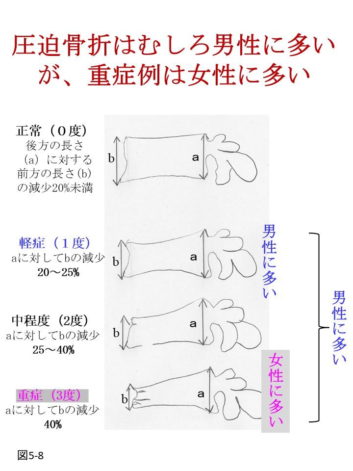 骨粗鬆症による圧迫骨折は女性より男性に起き易い。男性も注意が必要です