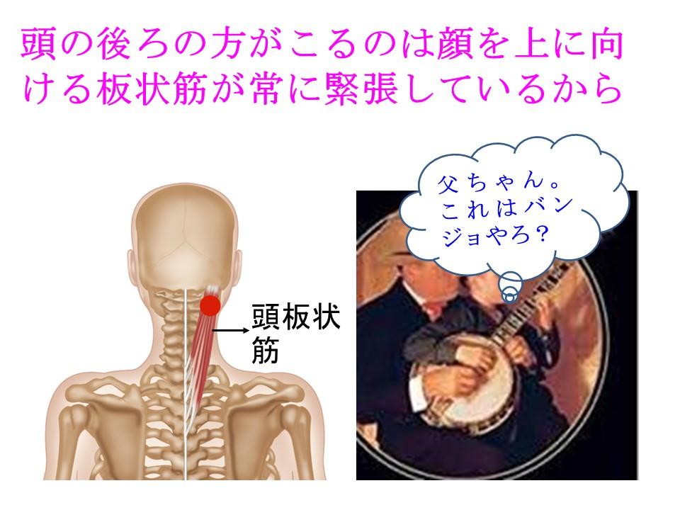 肩が凝ると頭の後ろが凝るのは顔を上に挙げる板状筋が凝るから