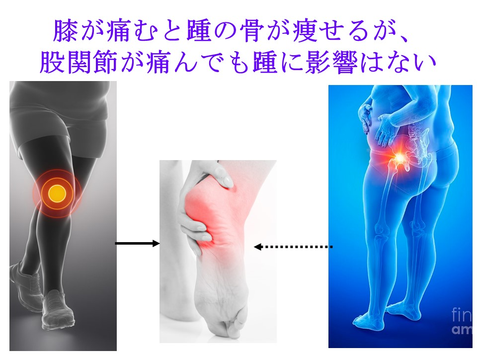 変形性ひざ関節症ではかかとの骨だけが骨粗しょう症になりやすい