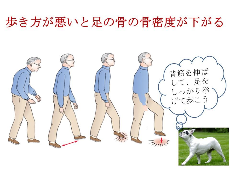歩き方がわるいのも骨粗しょう症の原因の一つ